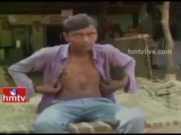 بالفيديو.. شاب هندي قلبه ينبض خارج جسده