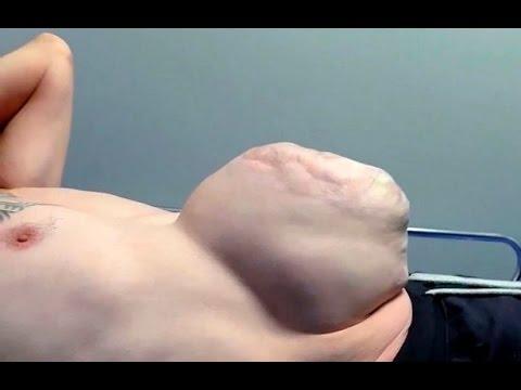 فيديو.. بريطاني يصاب بورم في بطنه بحجم كرة القدم
